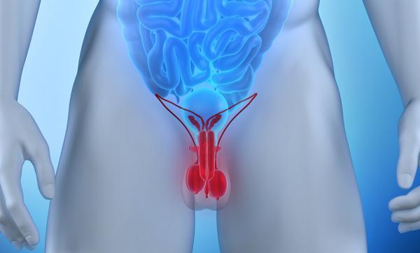 Idrocele testicolare