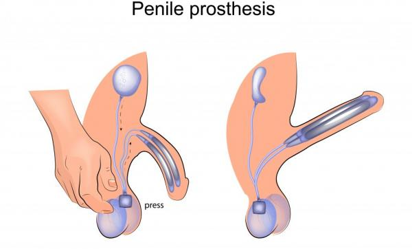 Protesi peniena